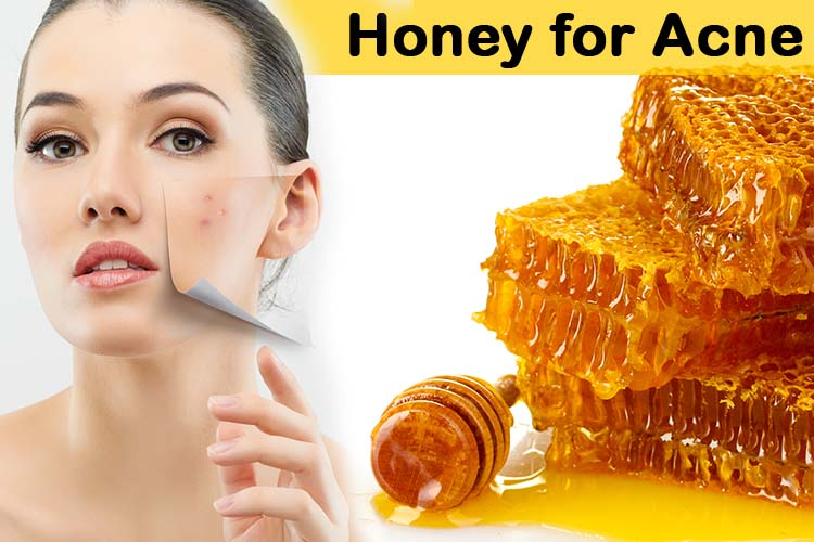 Incredible-Honey-Skin-Care-Tips-to-Reduce-Acne-Problems