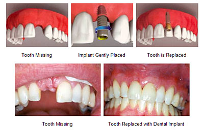 Benefits-of-Tooth-Replacement